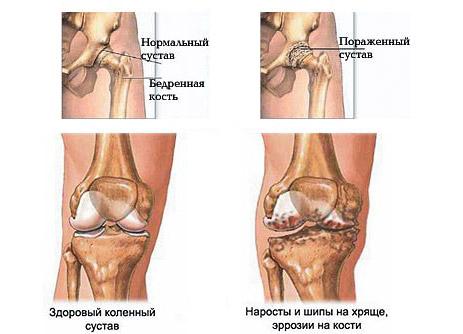 трения при движение костей в суставе снижается за счёт